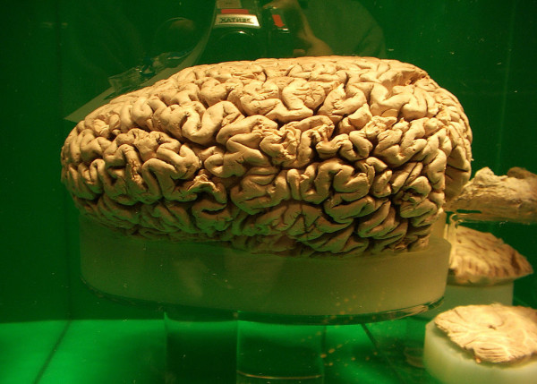 What animal has the largest brain What animal has the largest brain?