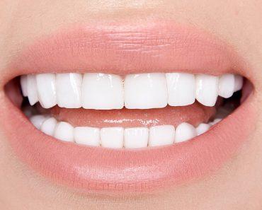 How do teeth whiteners work
