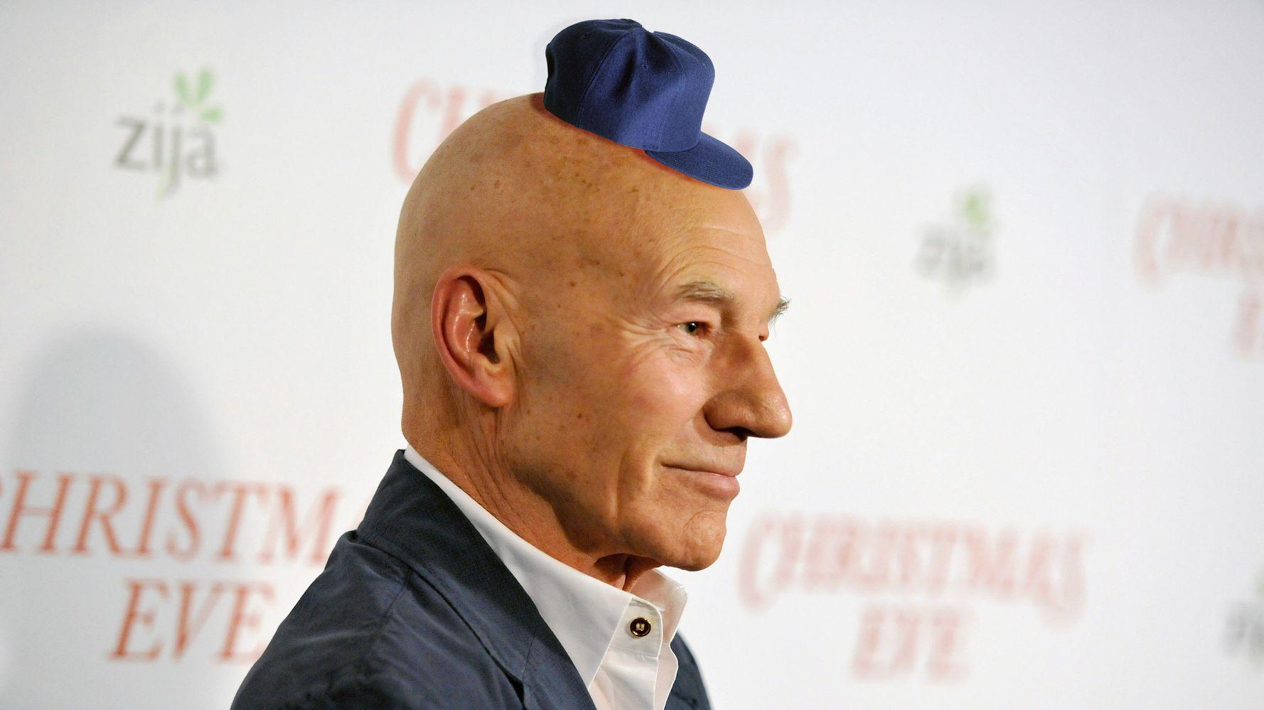 Do hats cause balding?